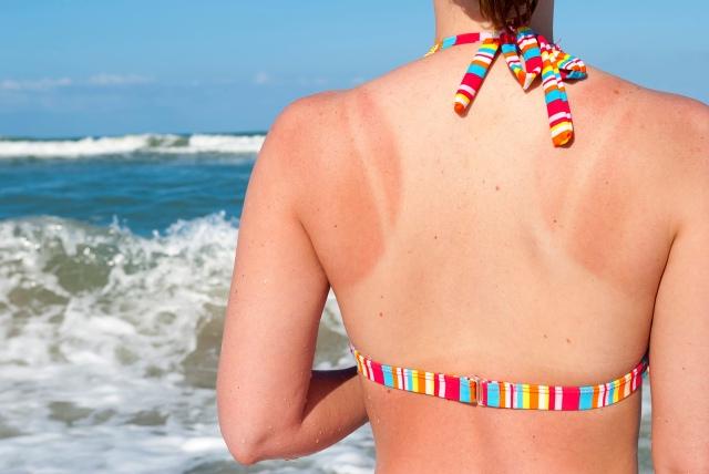 xhome-remedies-sunburn-main-052213.jpg.pagespeed.ic.7UTn1KE6Hu